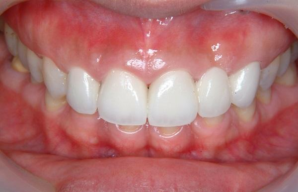 あなたの白く輝く歯のために